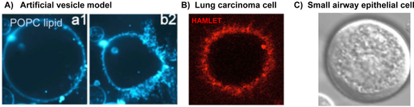 HAMLET induces receptor independent changes in curvature and tubulation in (A) Artificial vesicles (B) Tumor cells. (C) Healthy differentiated cells do not show membrane tubulation.