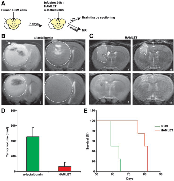 A. Xenograft model in which human GBM tumour spheroids (injected at the arrow) were allowed to establish for 1 week before a 24-h infusion with HAMLET (n = 19) or -lactalbumin (n = 10). B and C. MRI scans of individual tumors in rats treated with -lactalbumin (1-4) or HAMLET (5-8), were performed 7 weeks post infusion. D. The mean tumor size was significantly smaller in the HAMLET-infused animals than the -lactalbumin-treated group (P < 0.01). E. Symptoms of elevated intracranial pressure were recorded and occurred after about 2 months in the -lactalbumin controls, but the onset of pressure symptoms was delayed in rats receiving HAMLET (P < 0.001).